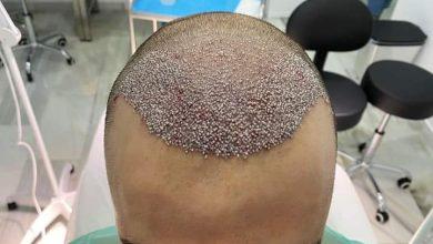 Photo of Tu injerto capilar con las técnicas más avanzadas será una realidad en DLD Clinic